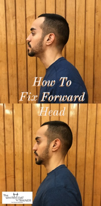 can-forward-head-posture-be-reversed